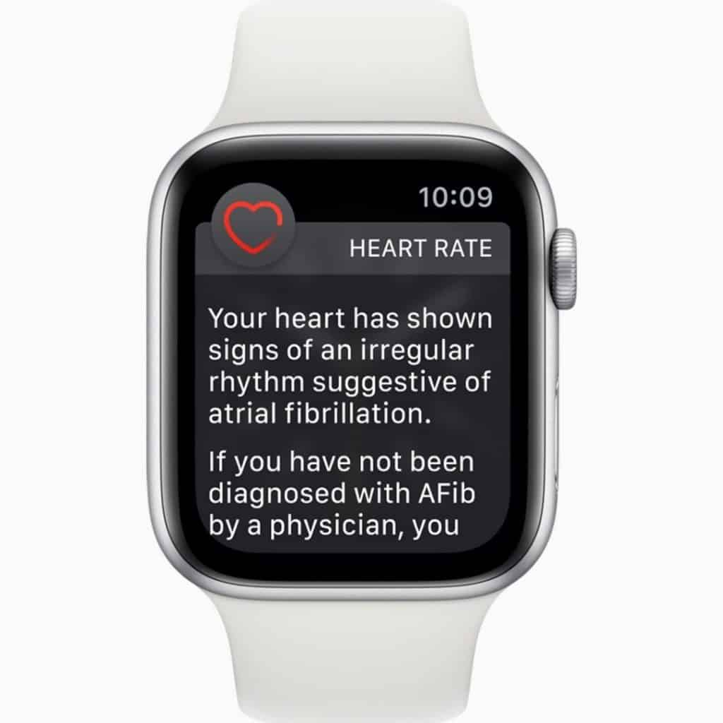 "White Apple Watch with a heart rate alert on the screen. The text reads ""Your heart rate has shown signs of an irregular rhythm suggestive of atrial fibrillation. If you have not been diagnosed with AFib by a physician, you..."""